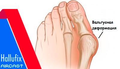 Косточка на ноге. Ортопедическая шина Халлюфикс для лечения косточки отзывы